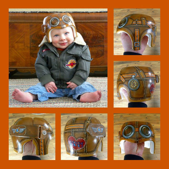 Medical Helmets For Babies