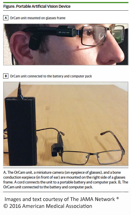 miniature camera mounts to eyeglasses of people legally