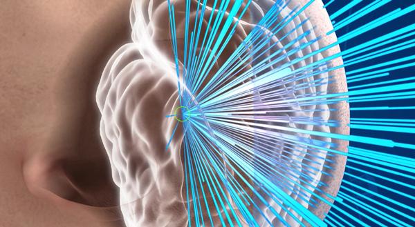 Insightec-Exablate-Neuro_0