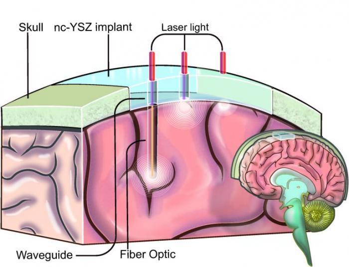 Skull Implants
