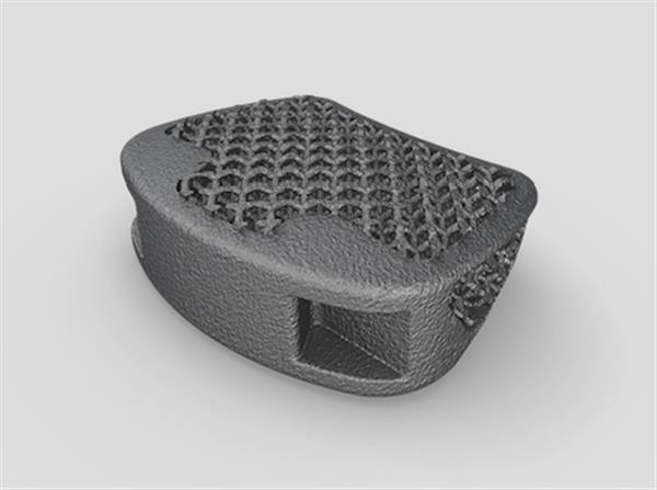 3D Printed Orthopedic