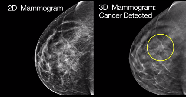 Fda imaging trials breast