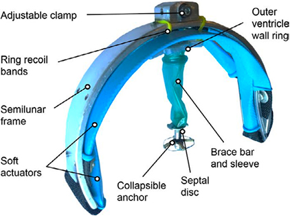 Robotic Cardiac Assist