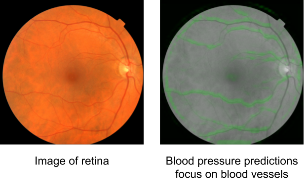 On the left: a sample retinal image from the dataset in color. On the right: attention map indicating areas that support the prediction for high systolic blood pressure in green, which overlap with the retinal blood vessels.