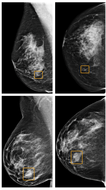 Breast Cancer Identification Imaging