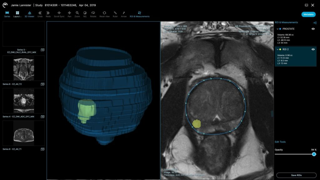 a screenshot of ezra's software showing a highlighted region of an abdominal CT scan