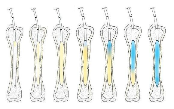 IlluminOss Bone Stabilization process graphic